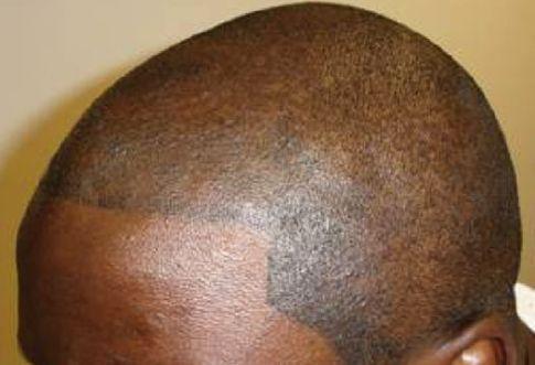 Tattooed hair.  A good hair loss strategy?
