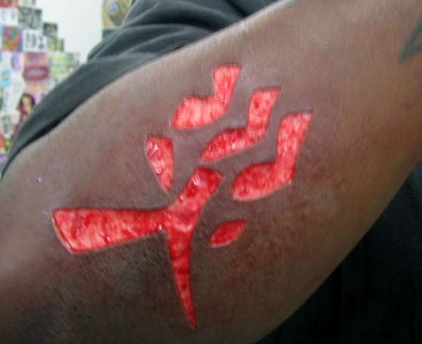 flesh removal tattoo
