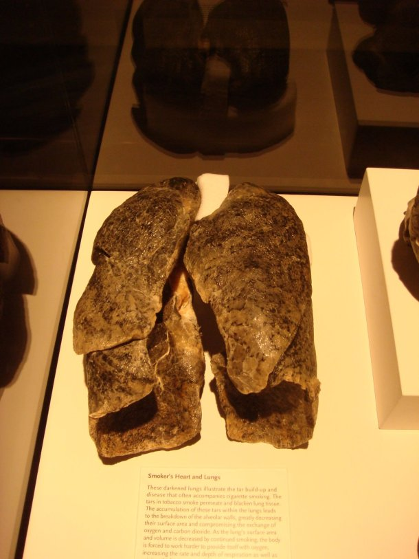 bodyworlds-smokers-lungs